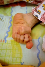 Six toes; One of the rare birth irregularities. Center for Nursing Children (''KE.PE.P'') in the small city of Lehena. Ileia prefecture, Southwest Greece.  © Maro Kouri