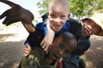 Albino and coloured blind children play together at Mitindo Primary School of Misungwi, located 45 km southeast of Mwanza. Mitindo is a school for blind children, but the last 2 years, became a shelter for albino children.   Mwanza, Tanzania, Africa    © Maro Kouri