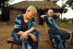 The two albino survivors: 16 year old Semeni and 12 year old Sida, outside their hut in Segerema. In February 2009, five assassins invaded their hut and cut off the limbs of their 14 year old sister, Unis Luguisha who died. Mwanza, Tanzania, Africa    © Maro Kouri